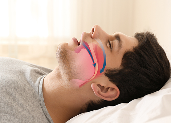 Sleep Apnea Treatment in Cincinnati